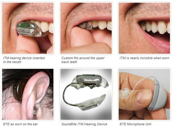 SoundBite   Une prothèse auditive dans la dent   Actinnovation ... 594963044737