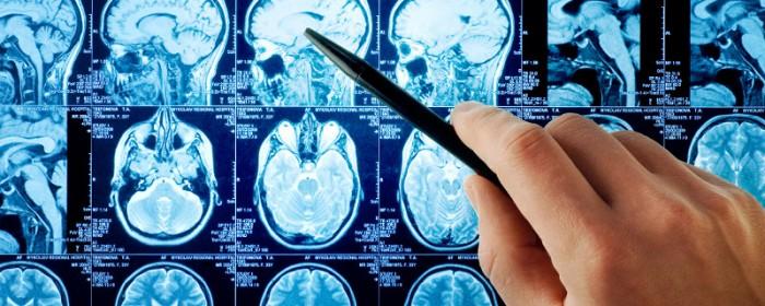 cerveau_activite_cerebrale